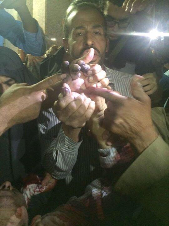 Yusuf Özhan (@Yusuf_Ozhan): 9 İhvan üyesinin, öldürülmeden önce parmak izlerinin alındığı öne sürülüyor. https://t.co/LuBHJzNyM6 http://t.co/tZ01VNUJtQ