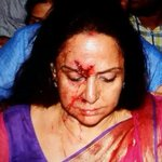 BJP MP Hema Malini injured in road accident in Dausa. http://t.co/qBrlA93SyW