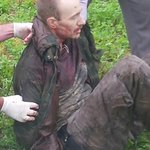RT @cnnbrk: CNN obtains image of captured inmate David Sweat as he was being taken into custody. Story: http://t.co/M0zDo4FokU. http://t.co…