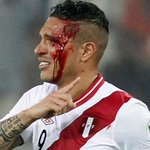 Así terminó Guerrero contra Uruguay en la CA pasada. Un codazo mala leche de los que hoy se escandalizan por un dedo. http://t.co/5HYmpe0Ppr