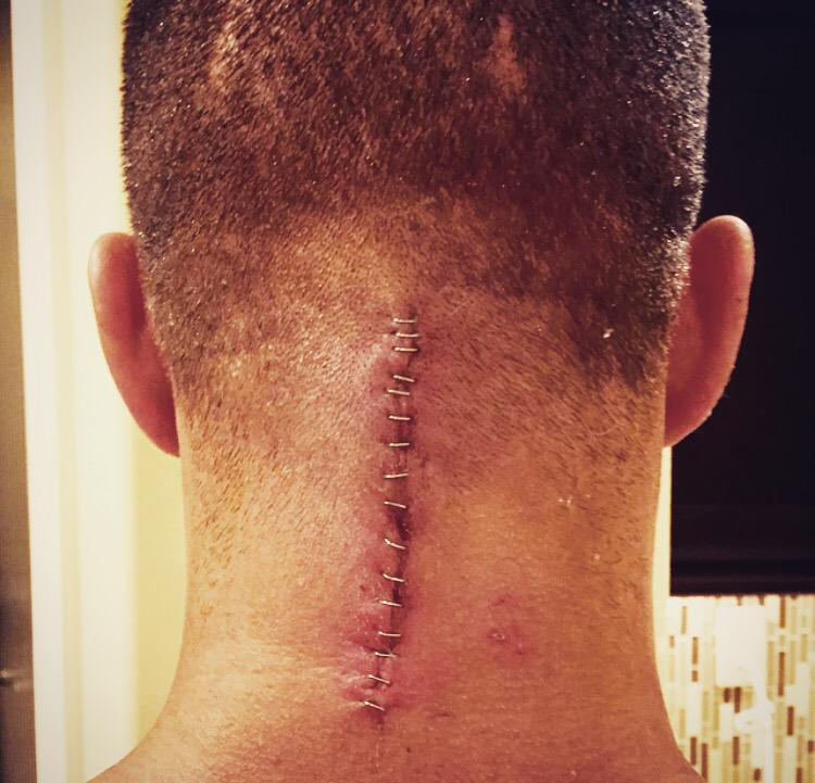 What good is a recovery if I fumble it? -@Eminem  Got my bandages off, long road to recovery begins http://t.co/u7GqpgsJu5