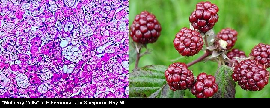 Mulberry Cells in a #Hibernoma  #Histopath #paintingonslide http://t.co/xmNucUduYh
