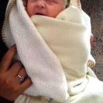 صورة.. إمرأة يمنية تلد طفلة بشعرٍ أبيض..والأطباء يؤكدون أن الشعر الأصلي للإنسان لونه أبيض. - http://t.co/n6aT6bnohR