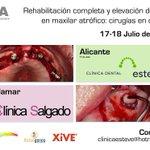 Todavía estas a tiempo! Cirugías en directo 17-18 Julio con @linoeste y @alberto1salgado @GuillemEsteve_ @AulaDental http://t.co/v3cDj6Oolh
