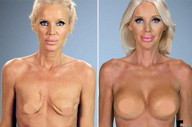 Shearer eat breasted woman