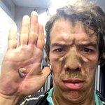 Mijitos así quedo mi mano después de la etapa de hoy!!! http://t.co/fr9N6AwBtq