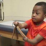 Este niño fue el primero en recibir un trasplante doble de manos. Su emotiva historia » http://t.co/NS2bduMvah http://t.co/grNXbimtQ6