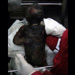 Zionist settler attack on a palestinian home - 18m baby burned http://t.co/yh4Q6MI1zW
