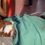 والدا الشهيد #علي_دوابشة بحالة حرجة للغاية http://t.co/i4WD1cPPh7 #حرقوا_الرضيع #علي_دوابشه_احرق_حيا #دوما #فلسطين http://t.co/02dxMMc6QI