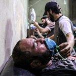 #سوريا #دمشق #جوبر . ٣١ #تموز ٢٠١٥ بعد قصف طيران النظام للحي بالغازات السامة و تم تسجيل عشر إصابات و شهيد http://t.co/i9izMy98PP