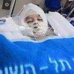 Ali Dawabsheh, 18 bulan, dibakar hidup-hidup oleh pendatang Zionis. Abangnya Ahmad & ibubapa dlm keadaan kritikal. http://t.co/ICmxIZ8ODS