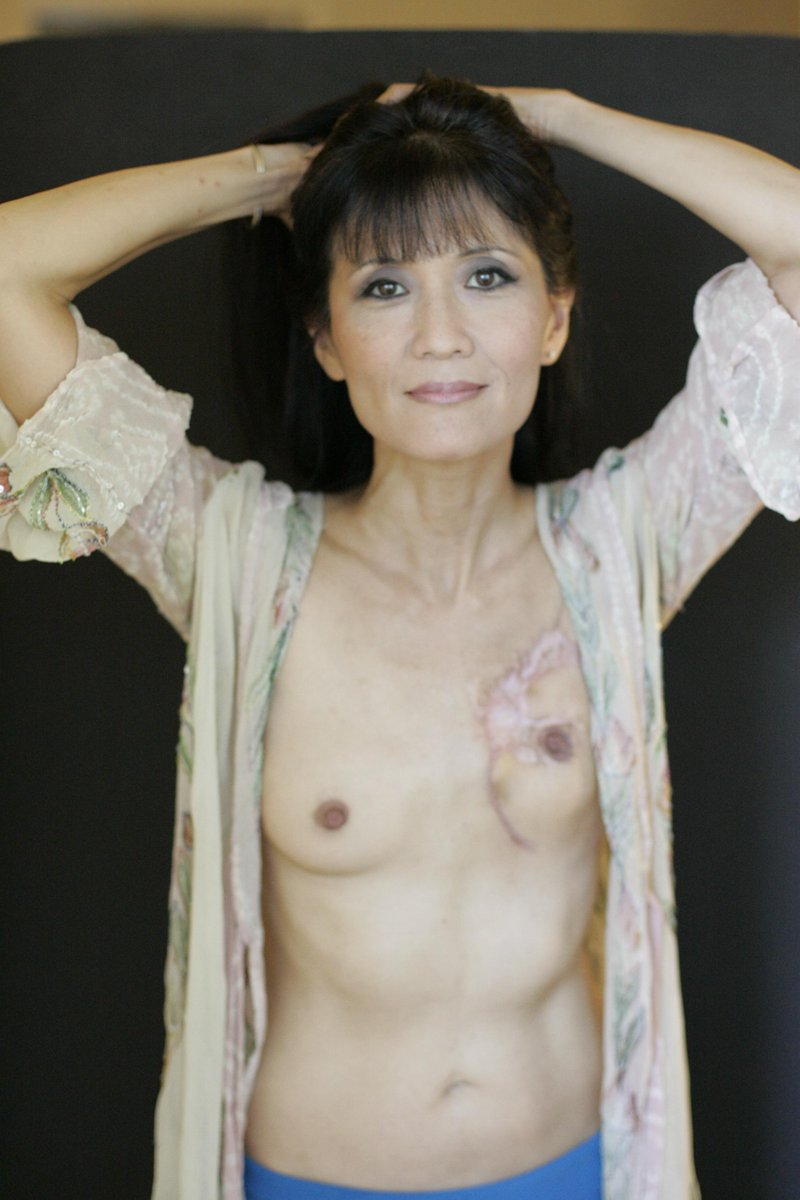 .@freethenipple I made stage 4 tit cancer my bitch!  No plastic surgery for me.  I've redefined beauty for myself. http://t.co/ZAyTSrAiyO