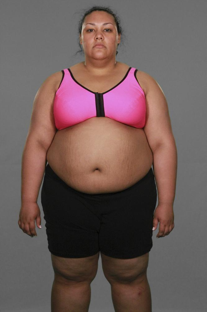 Weight loss injections nhs