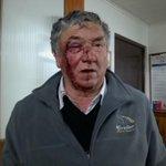 @muchogustoMEGA @Cata_Edwards brutal agresion de camioneros a choferes de buses de casablanca en ruta 68 lo vazquez http://t.co/jDuIuqu3Yl