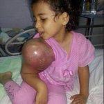 اسأل الله ييسر لها فاعل خير يتكفل في حالتها   فقط طال صبرها وهي طفلة http://t.co/7cVWNAvHz4
