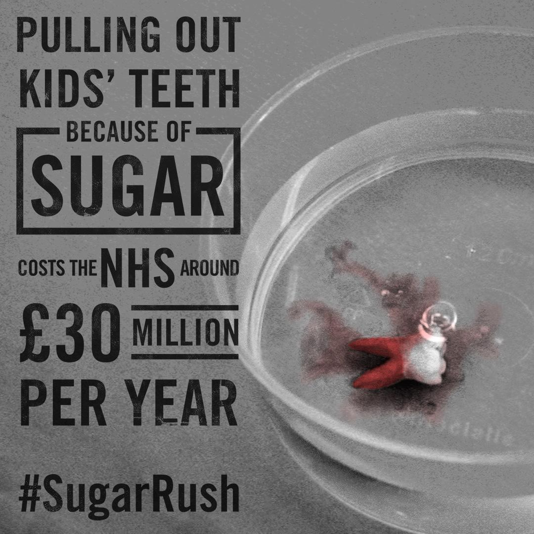 Pulling out kids teeth cost the NHS around £30 million a year #SugarRush http://t.co/6xjbaJFj15 http://t.co/NRodiyA5n6