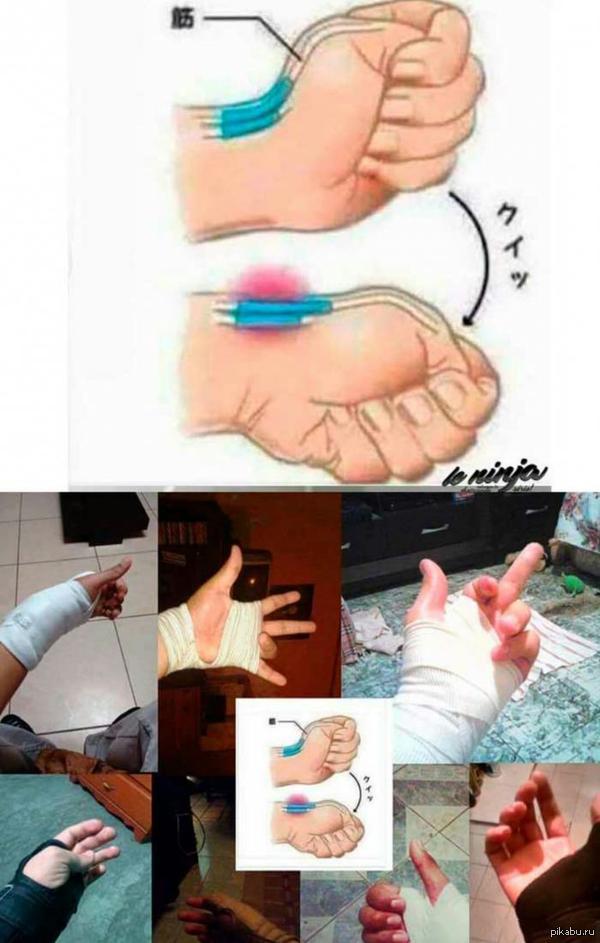 Как ушибить руку в домашних условиях
