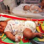 Bebê nasce com 5,9 quilos e bate recorde na Índia. http://t.co/sTgdqHnyX1 [@blogpagenfound] http://t.co/jYvZPzxwHw