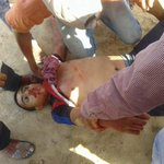 #Graphic: Mohammed, 15, unarmed, shot dead by #Israel in Khan Younis, #Gaza among 4 others. #rip #غزة #فلسطين_تنتفض http://t.co/ZGwEbXvDko