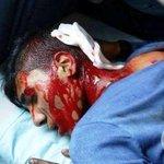 Zionist Terrorist shot this young Palestinian boy in Nablus http://t.co/Xv1Gv6xEgX