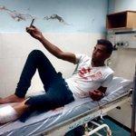 يأخذ سيلفي بعد الإصابة من رصاص قوات الإحتـلال خلال المواجهات في غزة , ويبتسم قائلاً غدا سأعود للمواجهات http://t.co/VX05YklLVO
