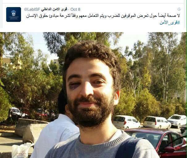 .@c_ha93 has been released, although LebISF claims detainees were never beaten, these were bruises of love #YouStink http://t.co/WvagmWghhx