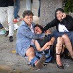 Terrorismo Turco di stato e non...poche differenze @dlepeska: http://t.co/4NxIQbkPoX @luigidegennar http://t.co/Gmm83jFuKO
