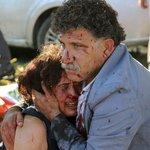 #FOTOS Dolor y desesperación tras sangriento atentado en Ankara, deja al menos 86 muertos ► http://t.co/O6jDwW1JTA http://t.co/A6EDKyX3Im