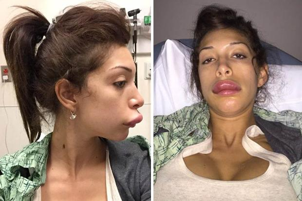 Celebrity plastic surgery failures images