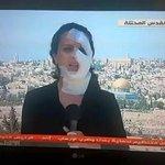 مراسلة صحفية فلسطينية تكمل عملها برغم إصابتها من قوات الاحتلال الصهيوني في #القدس المحتلة. http://t.co/MReFAnDvl5