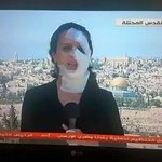 Palestinian journalist continue her work #Now after she was injured by Israeli forces this morning in #Jerusalem .. http://t.co/pnShkZ5R6I