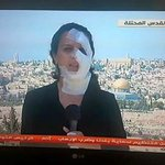 Palestinian correspondent Hana Hammad continues covering live news after Israeli soldiers fired gas bomb on her face http://t.co/p5iXtlIYoS