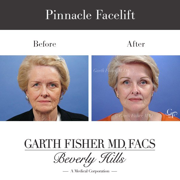 Before and After of my Pinnacle Facelift. To find out more visit: https://t.co/ghTN08hbkR https://t.co/Ozu3EcOYwg