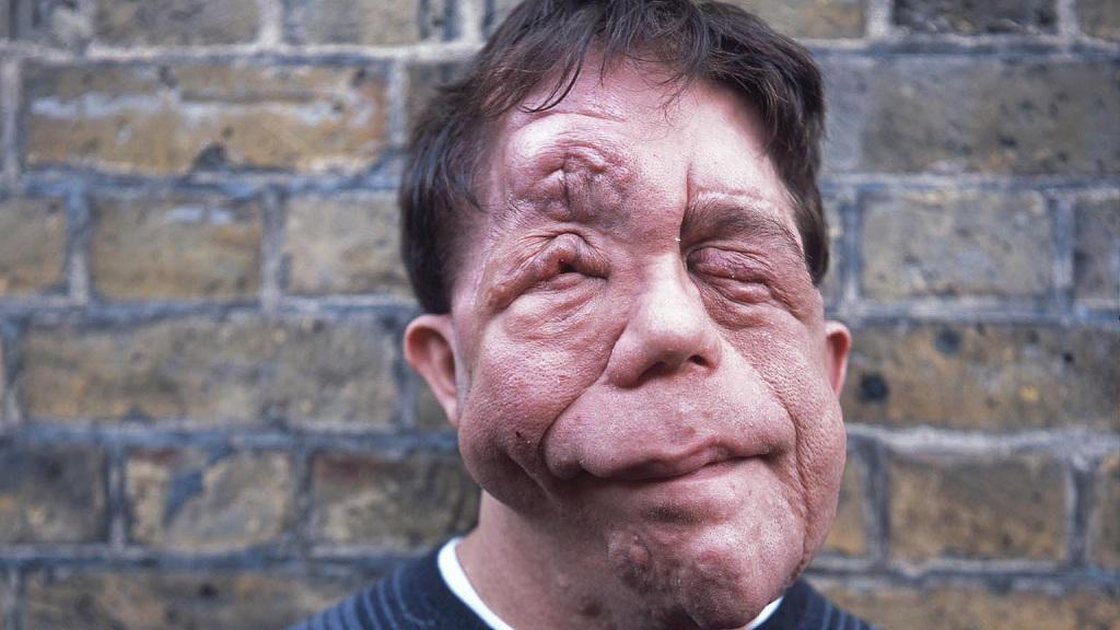 On #Crimewatch tonight, @Adam_Pearson talks about appearance-related #hatecrime. BBC1, 9pm http://t.co/dwRfPE8S07 http://t.co/9bEDMtAKHI
