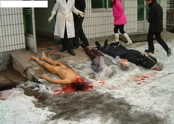 见证活摘  Organ harvesting in China (in chinese)  http://t.co/e0zop3f5Jc http://t.co/u2TBBYtq5z