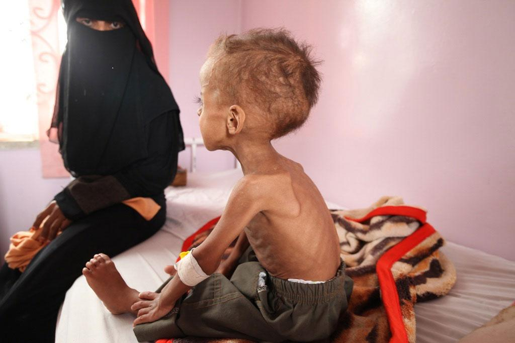 "More than half a million children now risk ""severe malnutrition"" in #Yemen – @UNICEF http://t.co/mh5MM0To5Z http://t.co/1SbnWpmsFP"