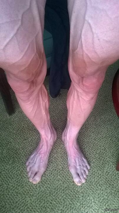 Как сделать чтобы ноги не горели 425