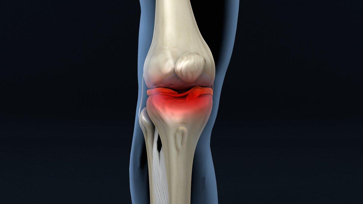 Hoy ligamentos y tendones, dolor al flexionar o estirar la pierna ...