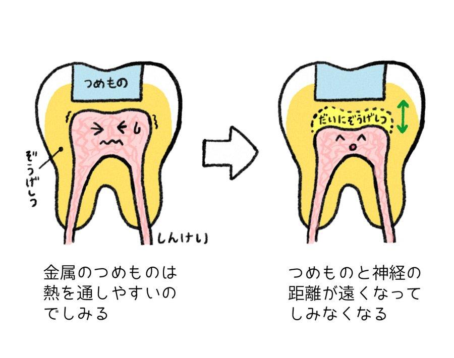 虫歯につめ物をして治療が終わった後も冷たい物がしみるのでおねえさんにおそるおそる話したら「そのうちしみなくなります」と言われてその時は理由がよくわからなかったんだけど時間がたつと第二象牙質というのができるらしくて歯すげえって思った https://t.co/WhKL7eMC5O