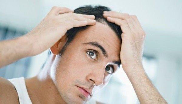 Peinados para hombres con poco pelo   Disimular las entradas