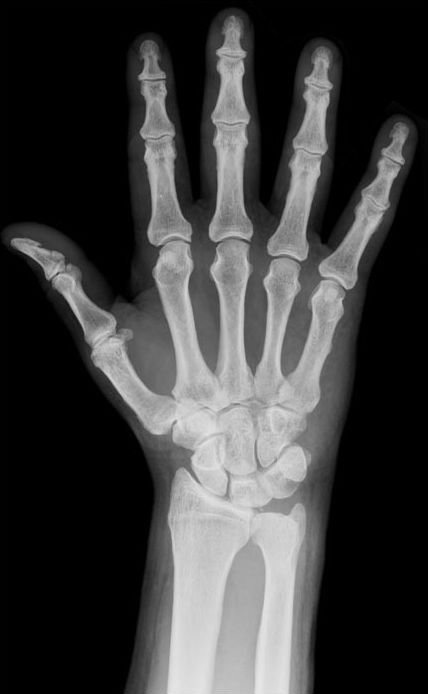 """The """"x"""" in """"x-ray"""" indicates an unknown quantity, much like it does in mathematics. https://t.co/Ul0csdLptF"""