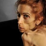Americana que pesava 18 kg mostra recuperação pós-anorexia bancada com doações online https://t.co/Mtj5ykbPgK #G1 https://t.co/gsq4m4znmb