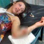 Subió foto al Facebook luego de ser atacada por su novio https://t.co/3OqYevEhzN https://t.co/JvITcuNmlD