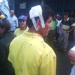 RT MarialbaT: Luis Urbina fue uno de los activistas heridos esta mañana por chavistas mientras esperaban a Caprile… https://t.co/qQek6hUaRz