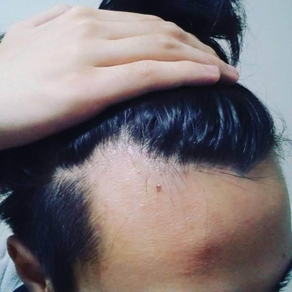 ワイ大学生、植毛を決意 https://t.co/rITvuL1nJw https://t.co/gk70vFDBo9