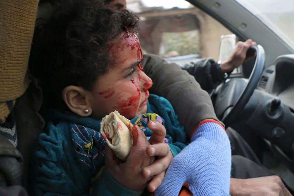 #Douma /Damascus hit by both Putin &Assad,yet they say their war's against ISIS! This girl still had her sandwich! https://t.co/E3shCZLbiG