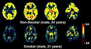 Smoking has visible effects on the brain. Top: 34 nonsmoker, bottom: 31 smoker picture via @TobaccoFreeKids https://t.co/hPfuMNAvDD