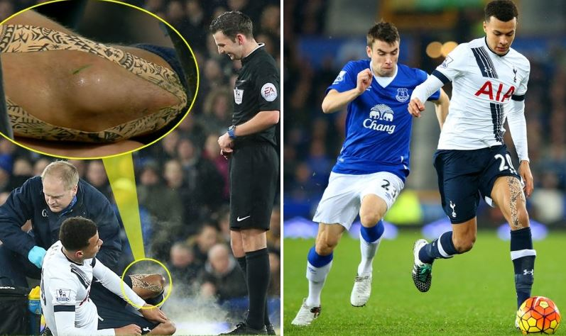 REVEALED: Why Dele Alli was wearing patterned knee tape