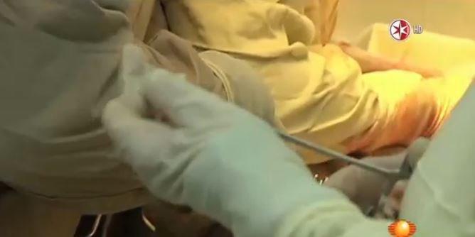 deformacion de pene