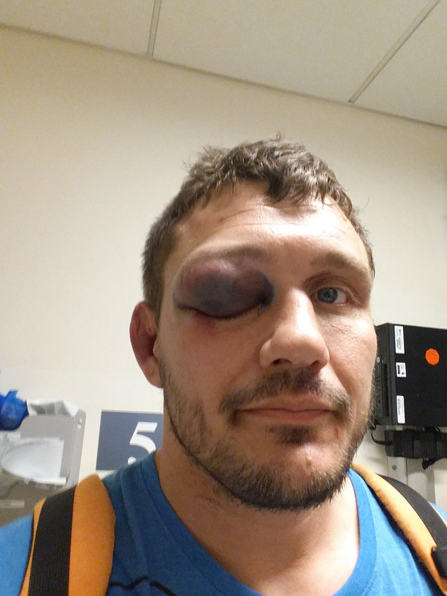 Broken orbital floor. This and the shoulder happened after the 2nd eye poke. I don't think they would've happened https://t.co/wFn1NC3j5Y